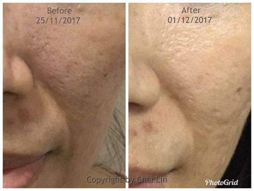 Clearer skin