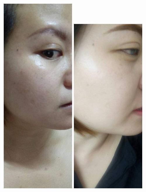 Whiter skin
