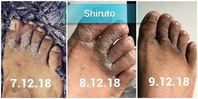 Shiruto reduce eczema