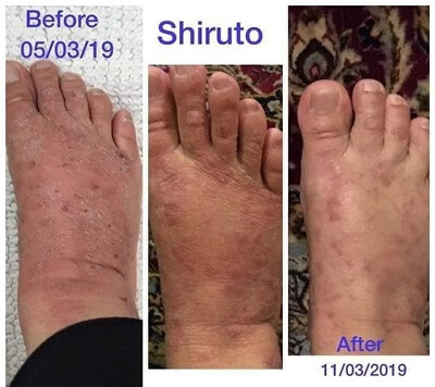 Aulora Kodenshi with Shiruto on Psoriasis