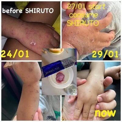 Shiruto HFMD testimonial