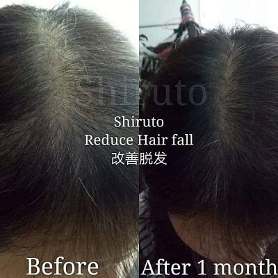 Shiruto reduce hair loss