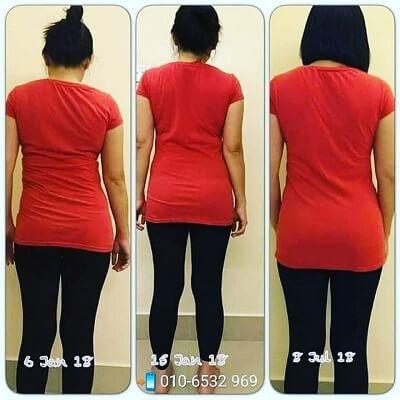 Aulora Pants Scoliosis 5