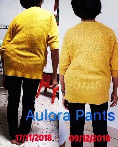 Aulora Pants Scoliosis 6