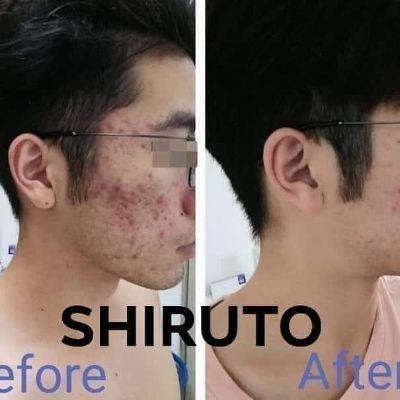 Shiruto for acne