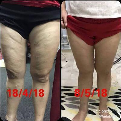 Aulora Pants cellulite 1
