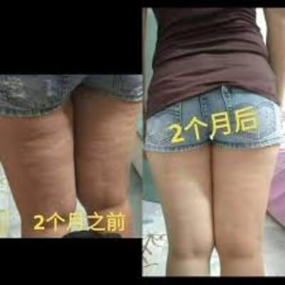 Aulora Pants cellulite 2