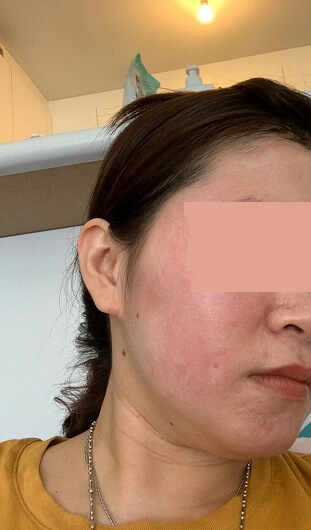 Dry skin condition