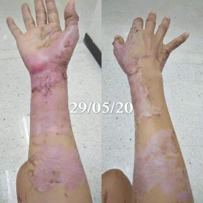Healing skin