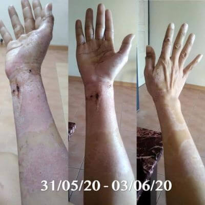 Skin healing well