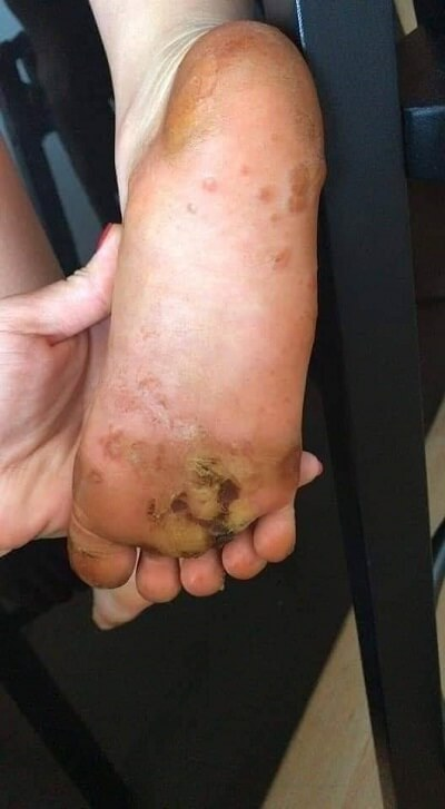 Unexplained blisters on foot