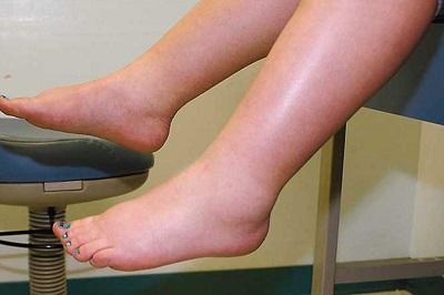 Water retention feet